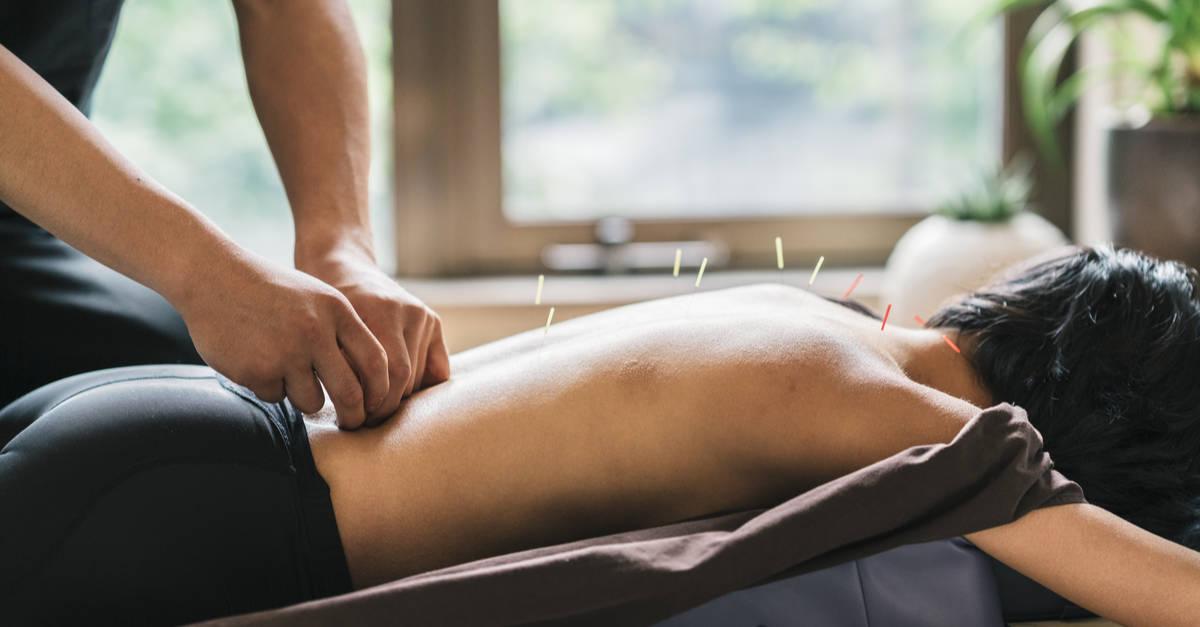Séance d'acupuncture pratiquée sur le dos